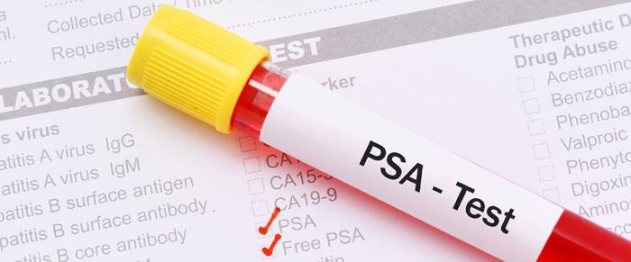 Cancer de la prostate - Qu'est-ce que le PSA ?