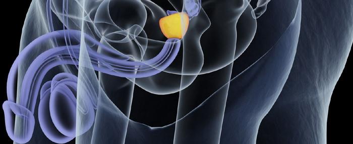 Les principaux traitements du cancer de la prostate