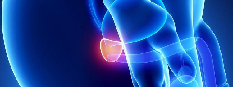 Les symptômes du cancer de la prostate